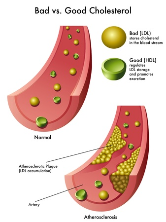 atherosclerosis: cholesterol Illustration