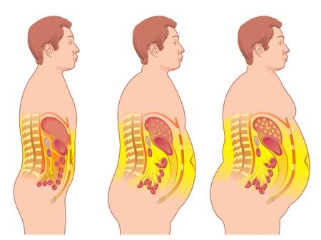 肥満  イラスト・ベクター素材