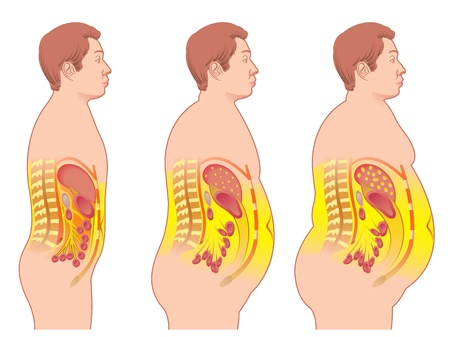 osteoarthritis: obesity Illustration