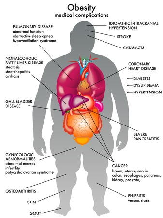 cholesterol: obesity Illustration