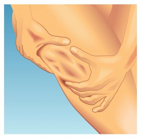 adipose tissue: cellulite Illustration