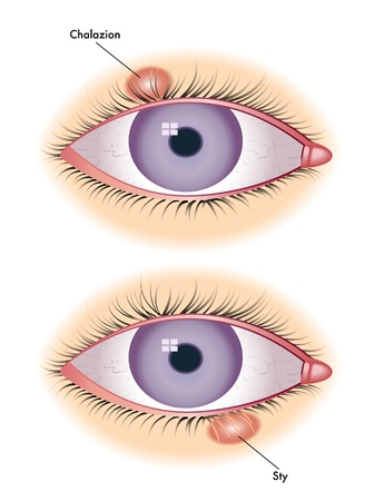 chalazion and sty Vector