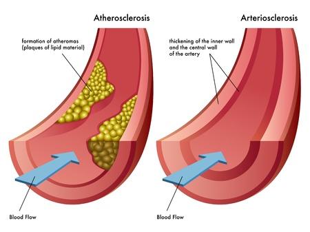 angina: Aterosclerosi e Arteriosclerosi