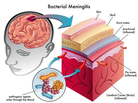 bacterial meningitis Illustration
