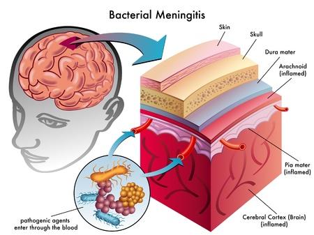 bacterial meningitis Vettoriali