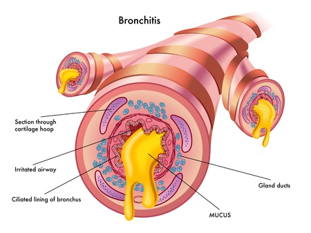 mucosa: bronchitis Illustration
