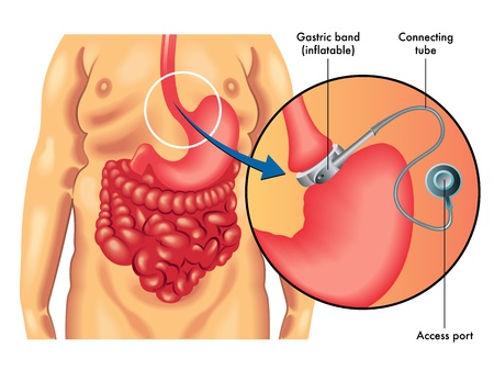silicone: Adjustable Gastric Banding