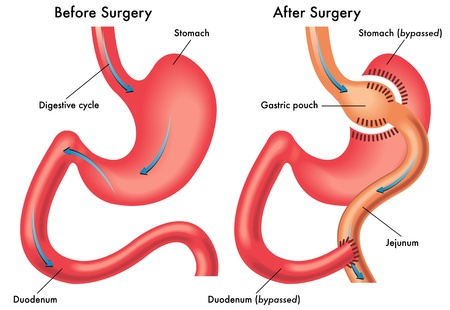 small intestine: gastric bypass Illustration