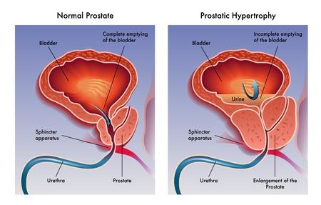 Prostatic hypertrophy Stock Vector - 21421489