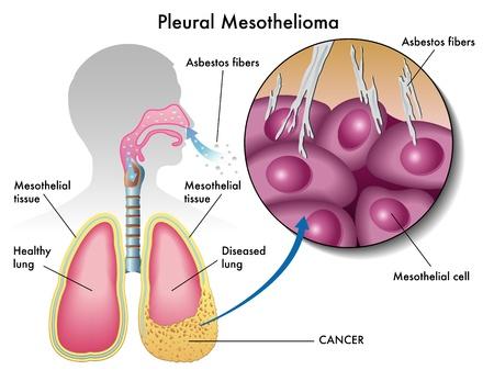 pleural mesothelioma Vector