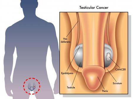 Testicular cancer Vector Illustration