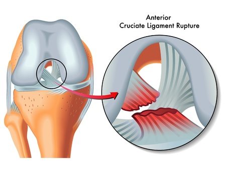 Anterior cruciate ligament rupture Stock Vector - 21961112
