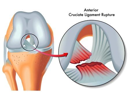 ścięgno: Zerwanie więzadła przedniego więzadła Ilustracja
