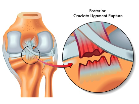 Posterior cruciate ligament rupture Illustration