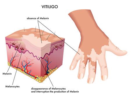 melanin: vitiligo Illustration