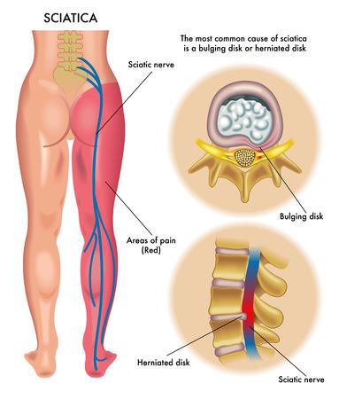 columna vertebral: ciática