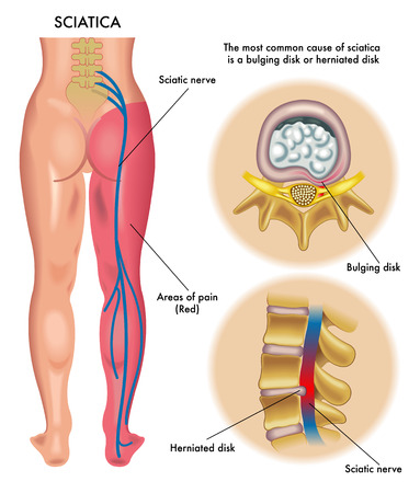 back of leg: sciatica Illustration