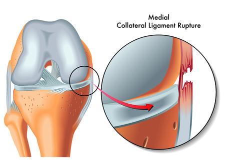 de rodillas: rotura del ligamento colateral medial Vectores