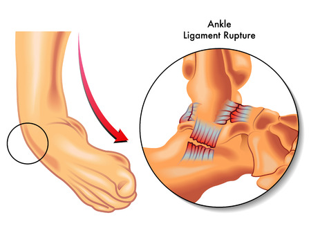 ankle ligament rupture Vector