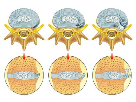 herniated disc Vettoriali