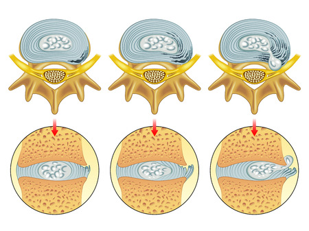 herniated: herniated disc Illustration