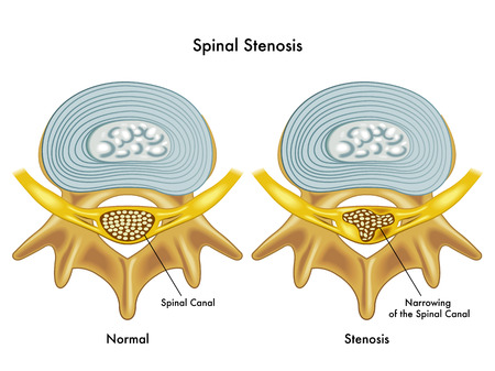resonancia: estenosis espinal