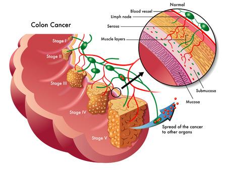biopsia: c�ncer de dos puntos
