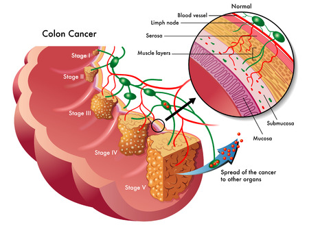 colon cancer: colon cancer Illustration