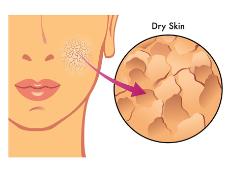 collagen: dry skin Illustration