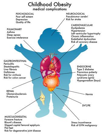 小児肥満症
