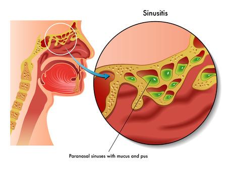 pus: sinusite Vettoriali
