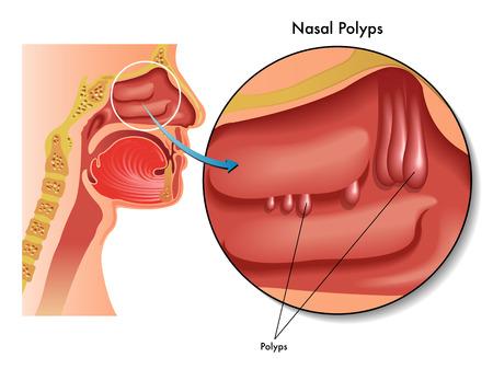 benign: nasal polyps