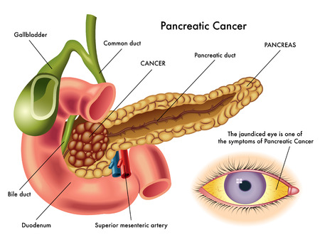 pancreatic cancer Stock Vector - 24959936