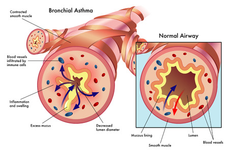 bronchial asthma Vector