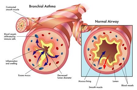 asthma: Bronchialasthma