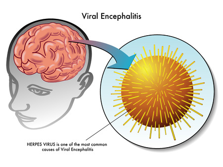 infectious disease: viral encephalitis