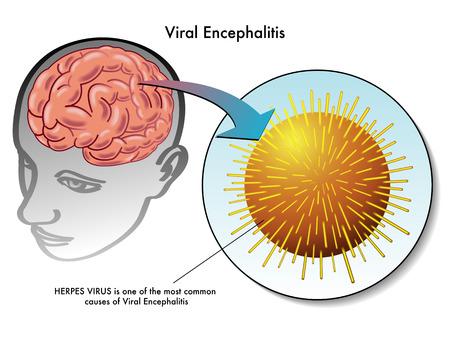 wścieklizna: wirusowe zapalenie mózgu Ilustracja