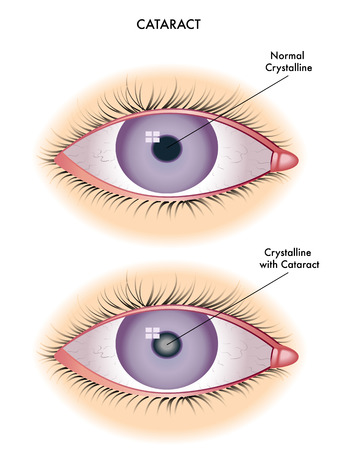 opaque: cataract Illustration