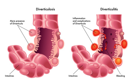 mucosa: Diverticulosis and  Diverticulitis Illustration