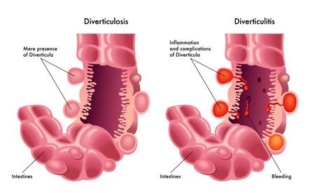 Diverticulosis en diverticulitis Stock Illustratie
