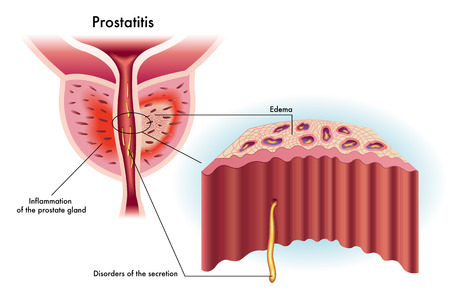 prostatitis Illustration