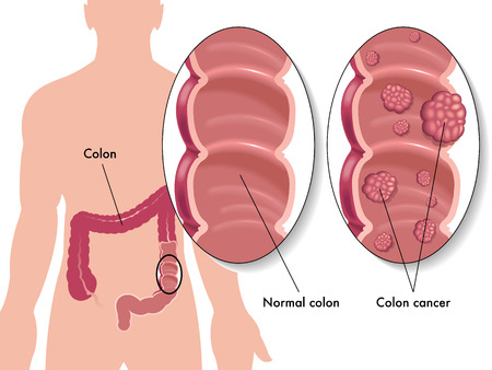 lymph vessels: colon cancer Illustration