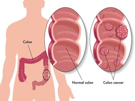 colonkanker