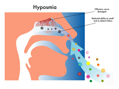 decreased: hyposmia