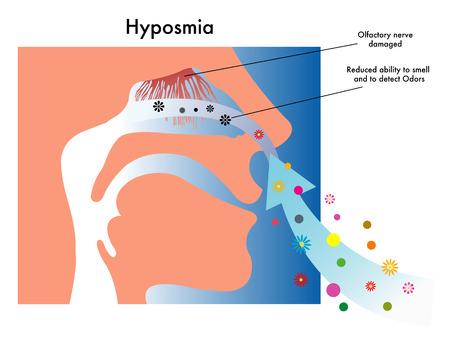 cellule nervose: iposmia