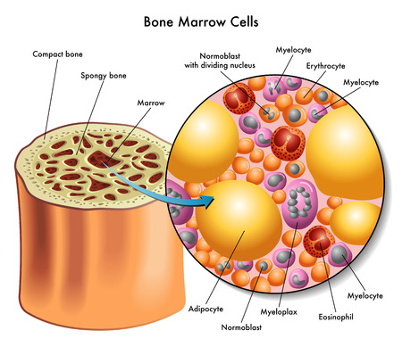 leukemia: bone marrow cells