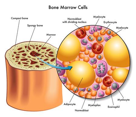 Biopsia: células de médula ósea