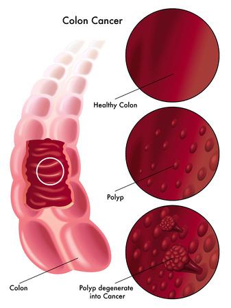 colonkanker Stock Illustratie