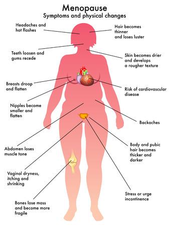 menopause Vector