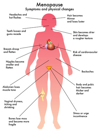 menopauze Stock Illustratie